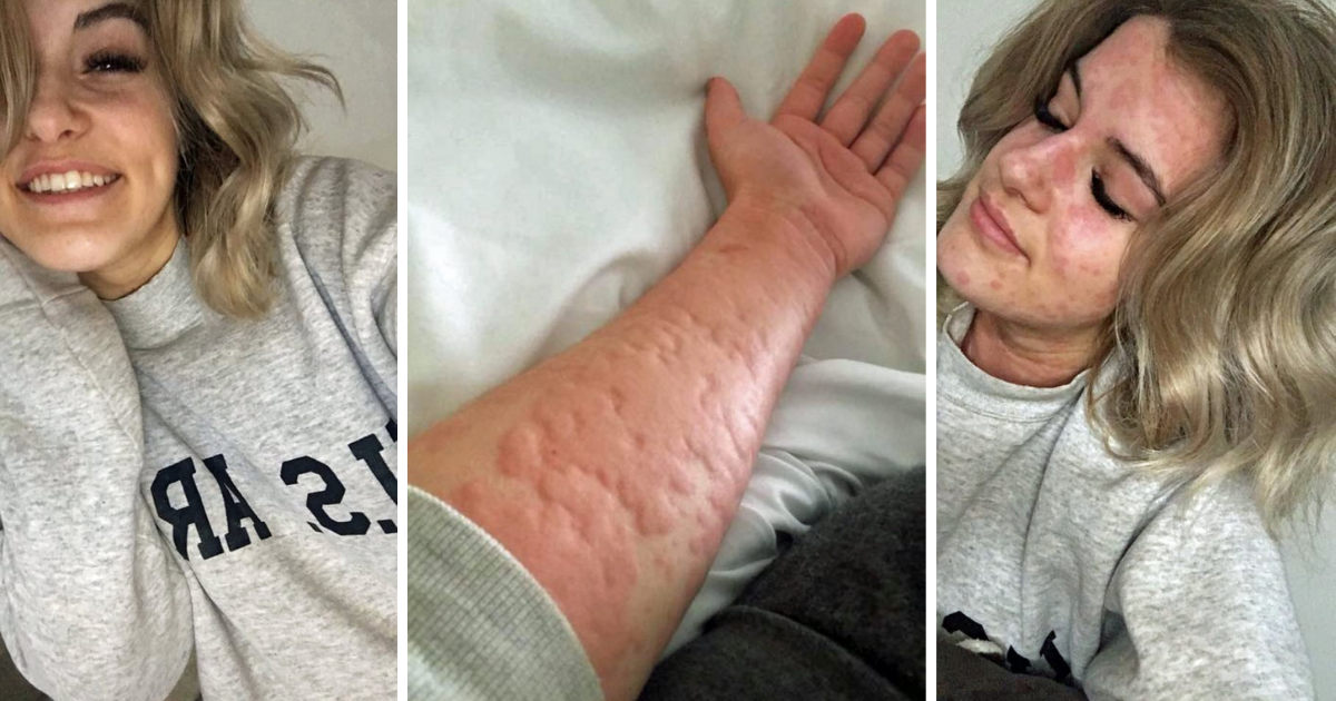 d3.png - 21-Year-Old Woman Is Allergic To Winter And Cold Weather Can Leave Her Hospitalized