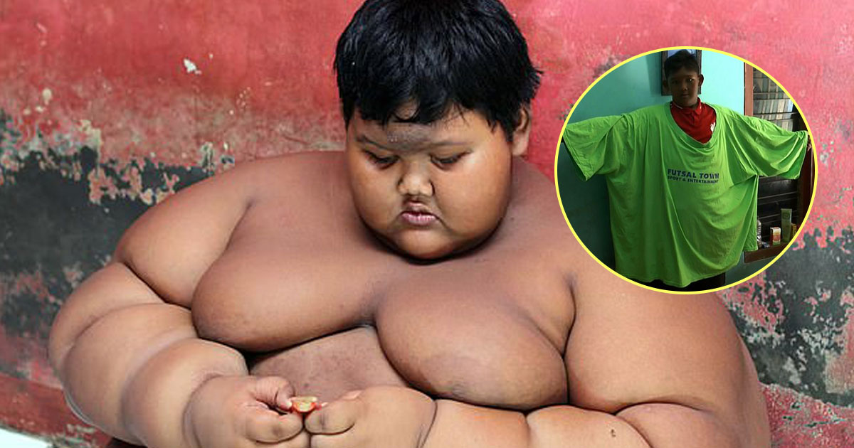 world fattest boy lost weight.jpg - World's Fattest Boy Lost Nearly Half Of His Body Weight In Life-Changing Weight Loss Journey