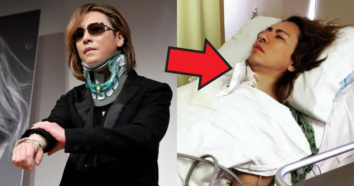 yoshiki.jpg - YOSHIKI 頸椎の状態悪化で3度目の手術?ドラム活動続けられる?