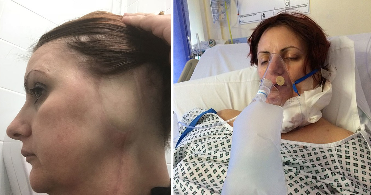 bbdd.jpg - Woman Had Her Ear Amputated After Doctors Misdiagnosed Skin Cancer For A Wart For Five Years