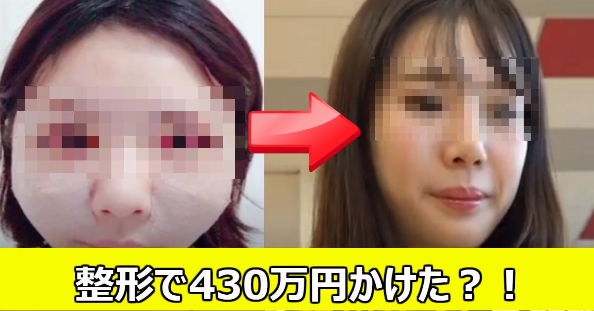 seikei.png - 430万かけて整形した?24歳女性の現在の思いとは?