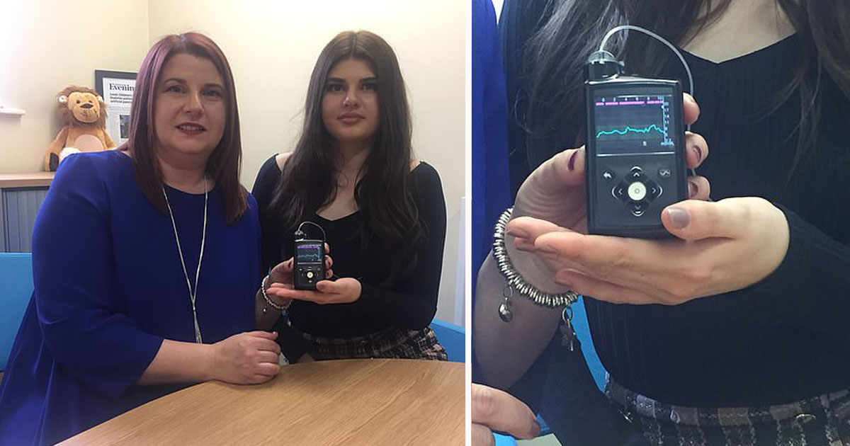 girl with diabetes.jpg - 17-Year-Old With Type 1 Diabetes Has An Electronic Insulin Pump Installed Which Automatically Injects Insulin