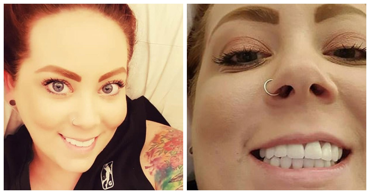 teeth.jpg - An Australian Woman Has Debuted Her Amazing New Smile After Spending $5,500 On Whole Mouth Reconstruction