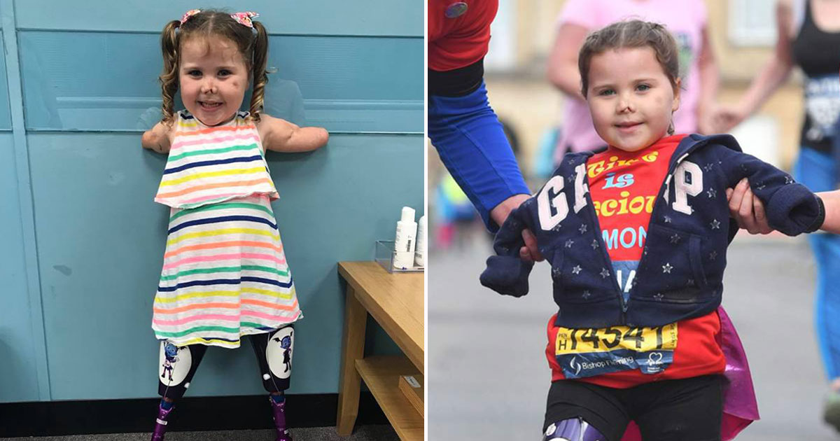 toddler without limbs marathon.jpg - Toddler Without Limbs Completes Her First Marathon