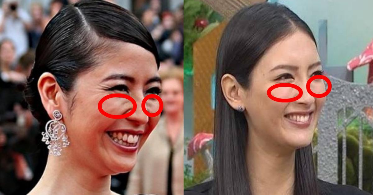 gorugo 1.png - なかなか消えない顔のゴルゴラインを消す方法は?自己管理で何とかなる?