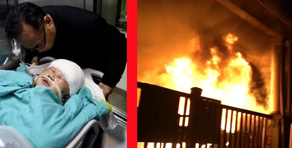 img 5a5868f90840c.png - 全身に「火」が燃えて痛みを抱えながらも「孫娘」を救ったおばあさん