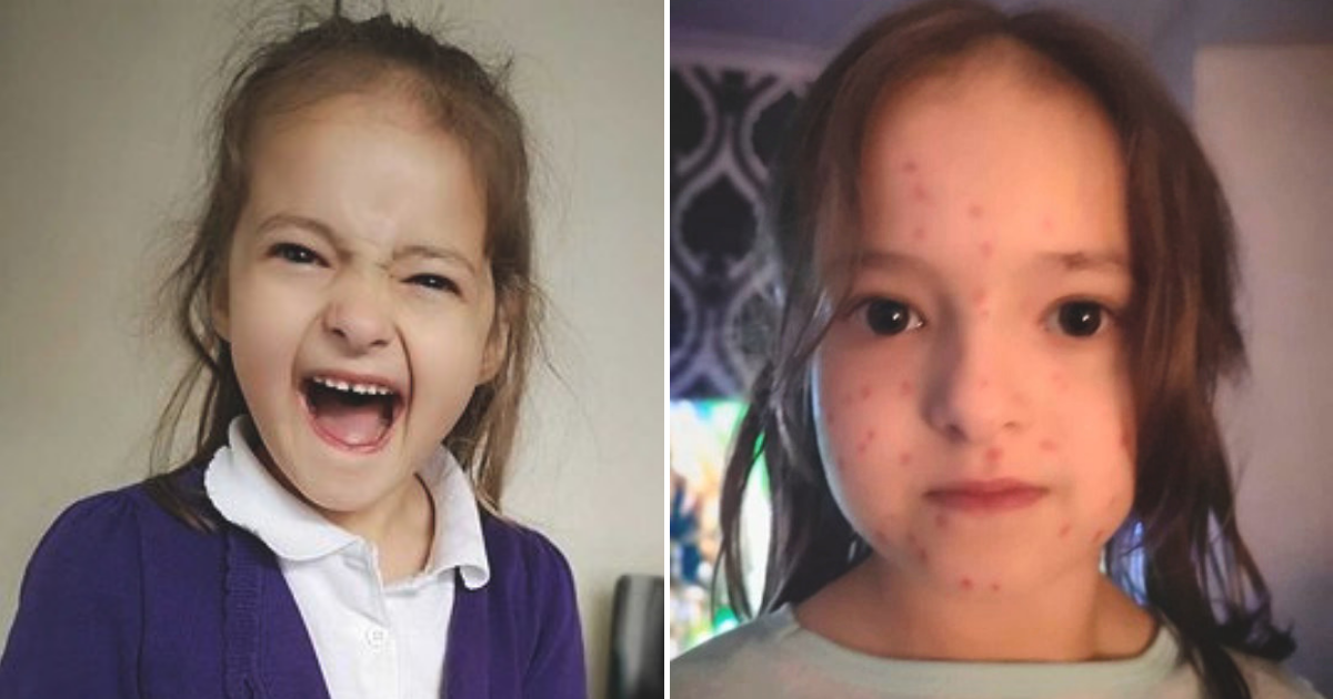 lily5.png - 6-Year-Old Girl Drew Chicken Pox All Over Her Body To Skip School