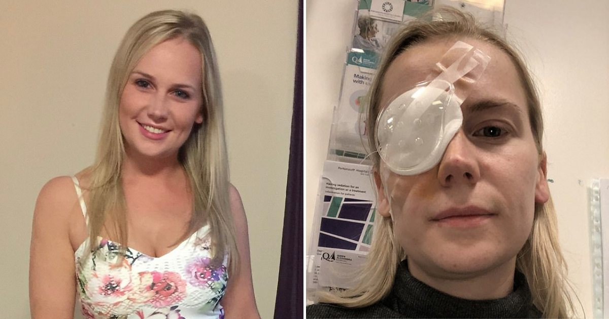 eye5.png - 27-Year-Old Woman Woke Up Blind After Thinking She Only Had Stray Lash In Her Eye