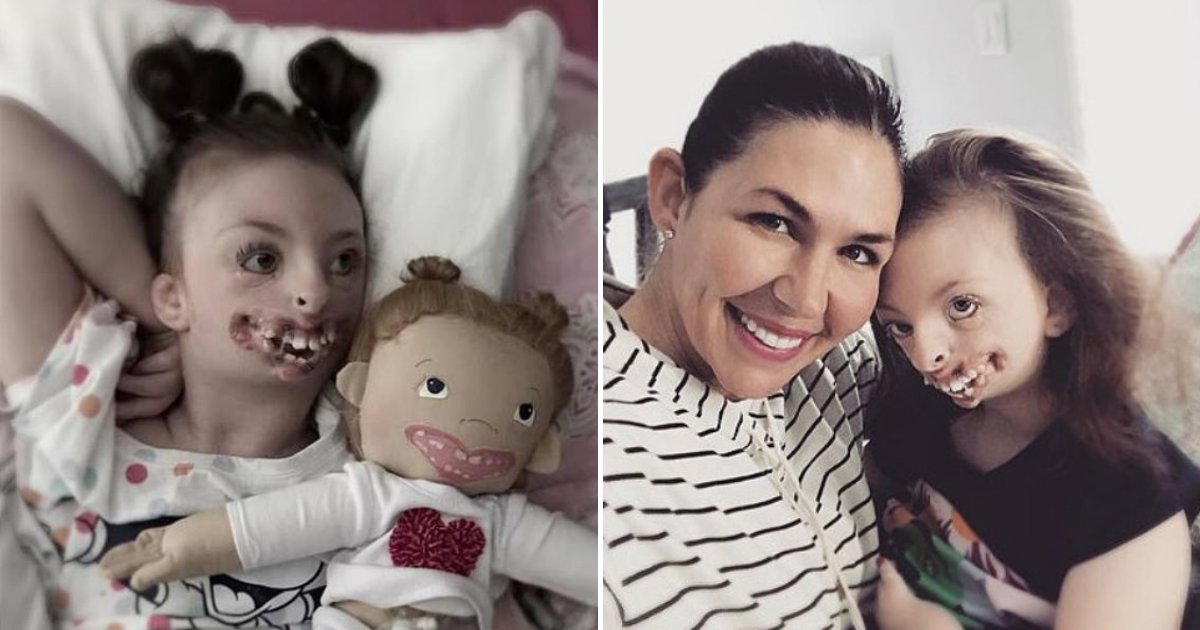 sophia5.png - Girl With Facial Deformities And Rare Brain Disorder Passed Away Aged 10