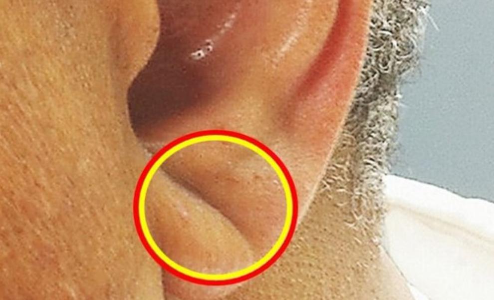耳たぶ の しわ