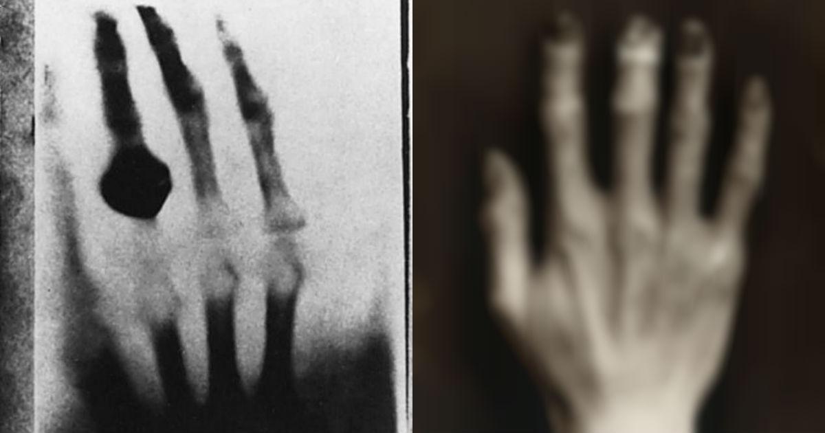 15384688 7180945 image a 13 1561755657539.jpg - 'X-Ray' 개발 위해 8년간 '방사선' 맞았더니 생긴 '충격적인' 변화
