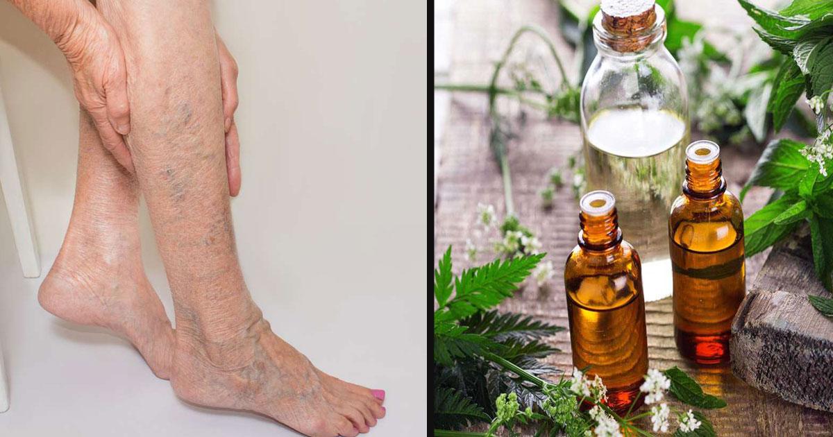 untitled 1 45.jpg - Essential Oils Help In Reducing Varicose Veins
