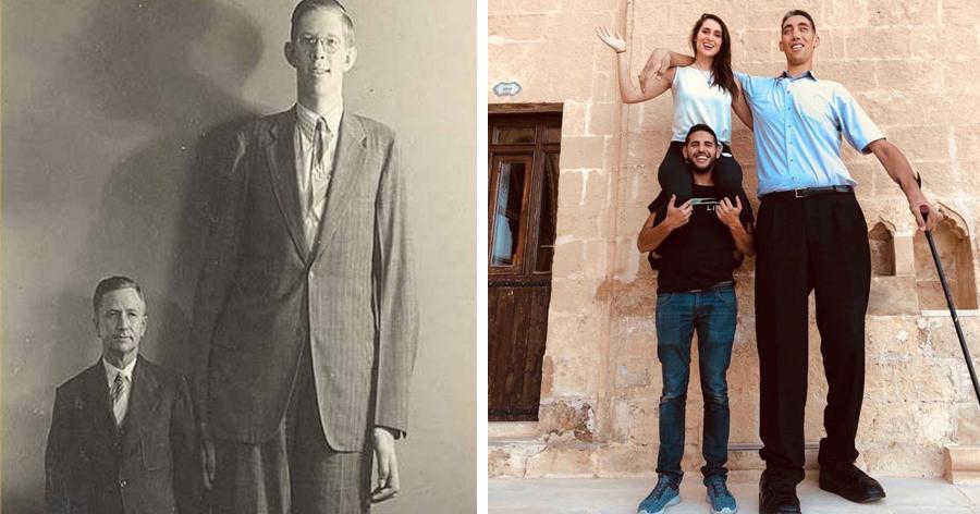 a1 25.jpg - 12 Pessoas que impressionam o mundo com seu tamanho