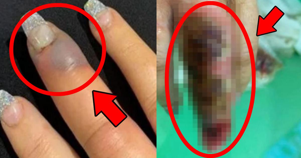 nail.png - ネイルサロンで施術後に救急搬送?指が腐っていき非常事態に!