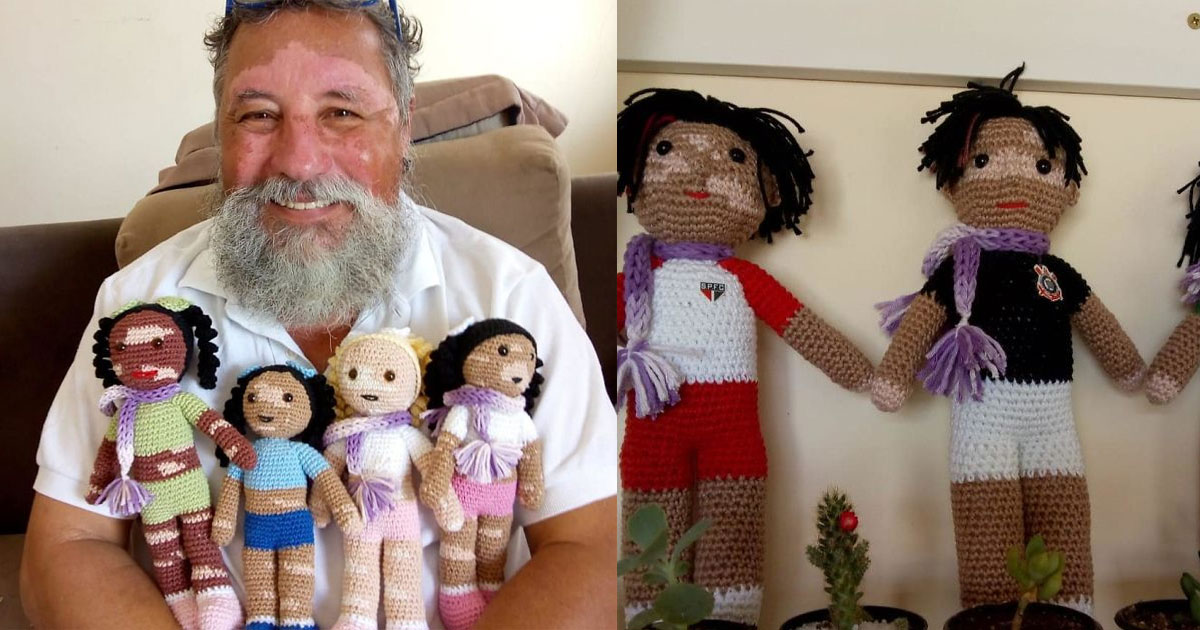 man with vitiligo knits dolls to make children with this condition feel normal and valued.jpg - A Man With Vitiligo Knits Dolls To Make Children With This Condition Feel Normal And Valued