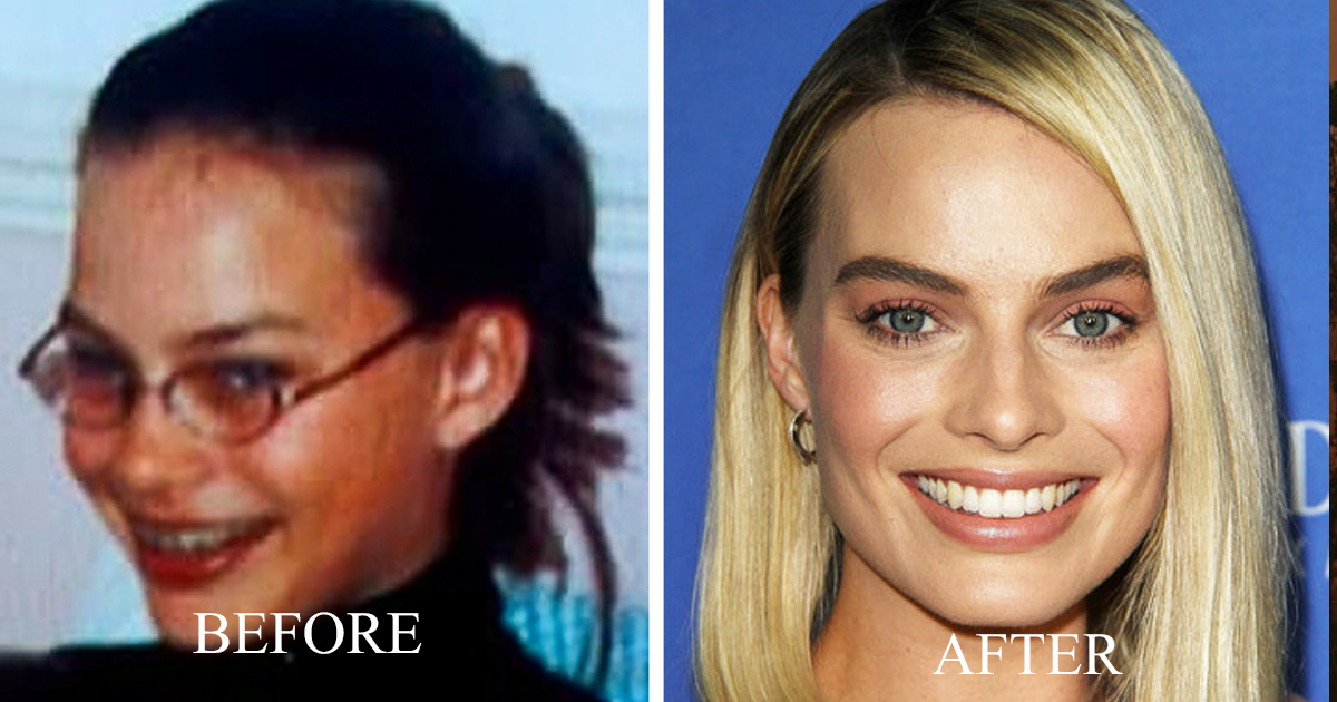 aggag.jpg - 9 Celebrities That Were Ugly Ducklings, But are now Idols for Many