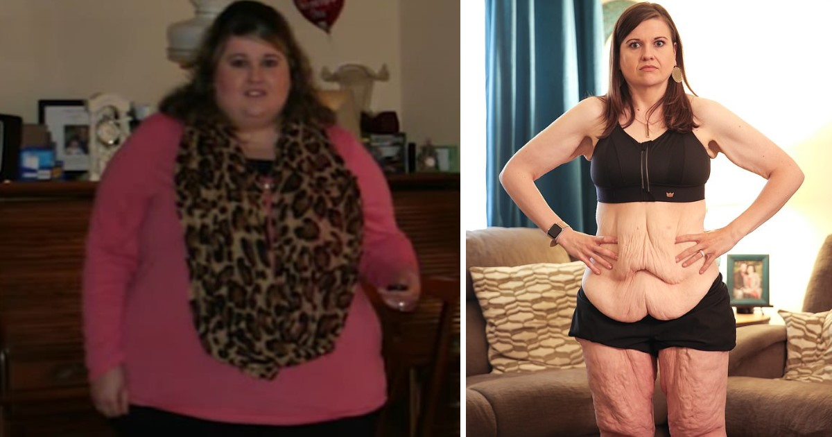 a 7.jpg - A Woman Lost 260lbs In An Unbelievable Transformation But Was Left With 20lbs Of Extra Skin