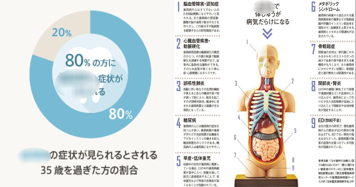 """e696b0e8a68fe38397e383ade382b8e382a7e382afe38388 6 3.png - 日本人の8割が""""OO病""""って?命にかかわる重大な疾患にも…"""