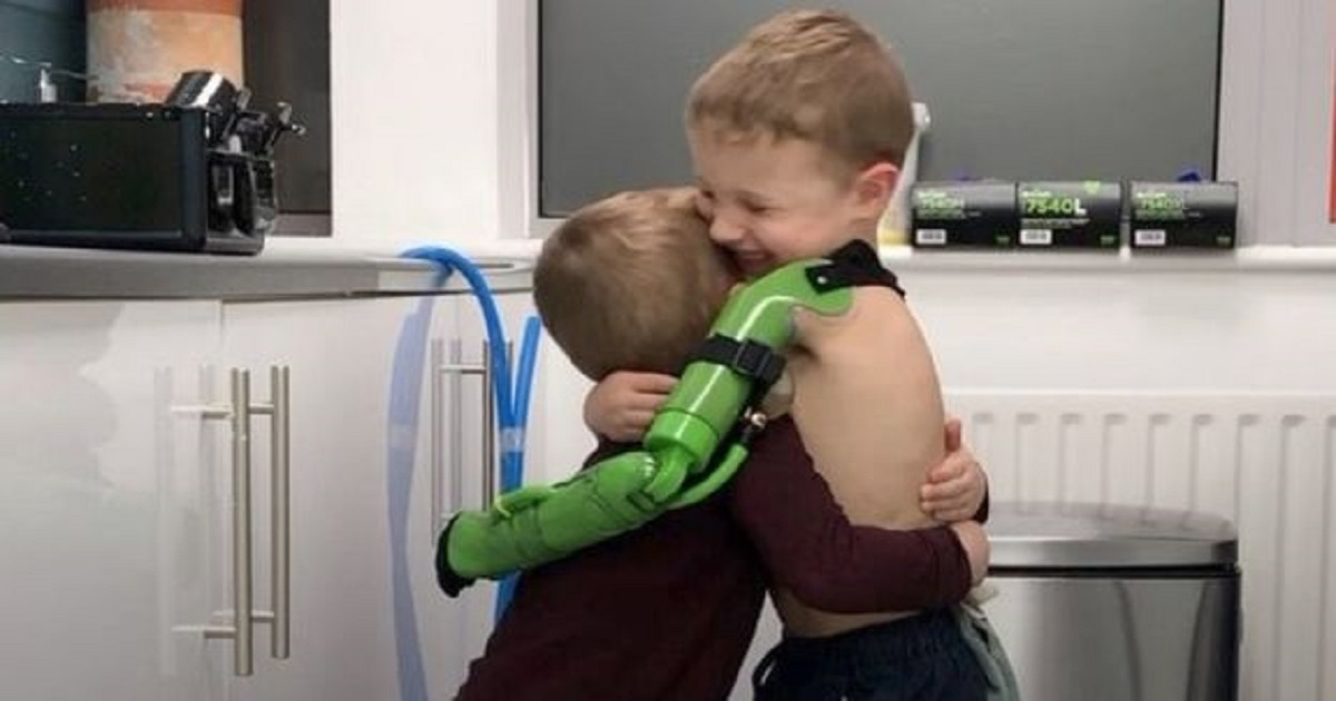 p3 3.jpg - 5-Year-Old Boy Hugged His Brother The Moment He Received His Prosthetic Limb