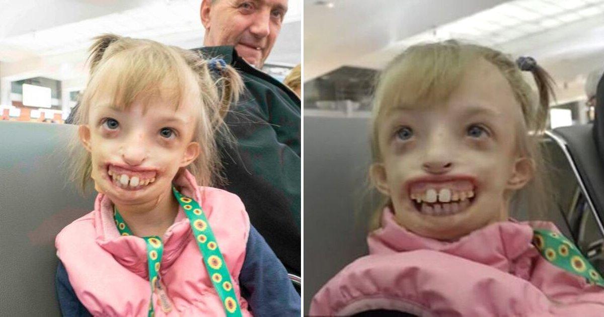 portad 2.jpg - Una Niña Nacida Con Media Cara Pudo Sonreír Por Primera Vez Después De Una Operación De 11 Horas
