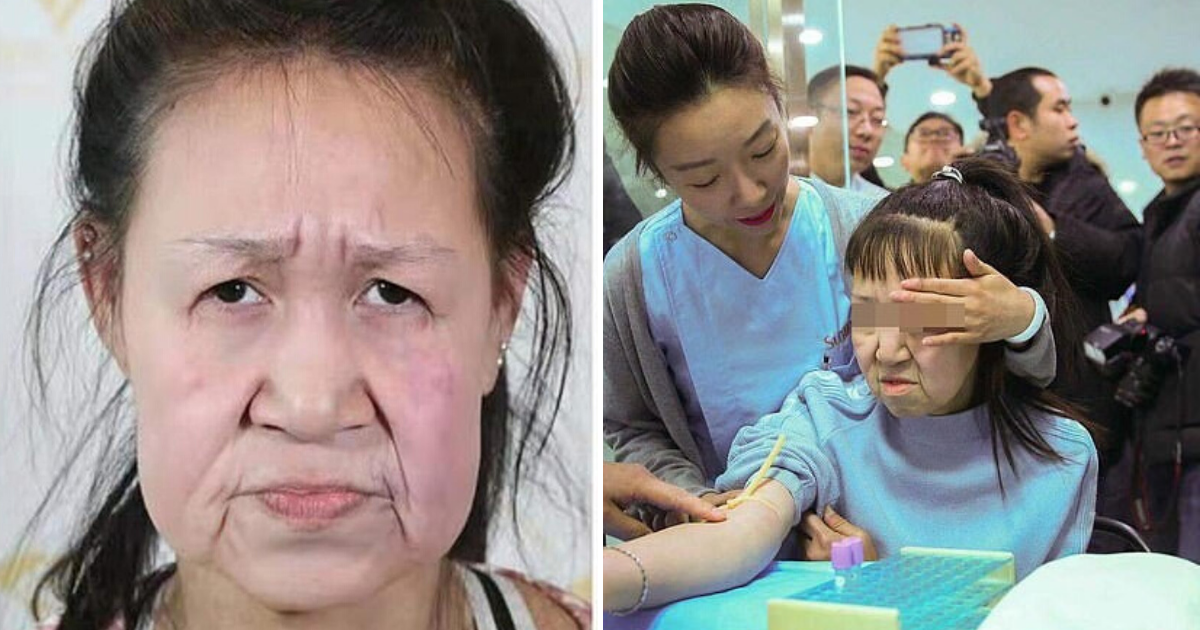 untitled design 7 2.png - 15-Year-Old Girl Received A 'New' Face After Being Bullied For Looking Decades Older