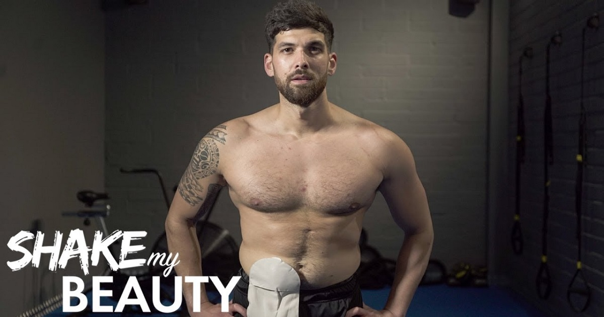 """b3 9.jpg - Personal Trainer """"Proud"""" Of The Stoma Bag That Helped Him Beat The Odds And Survive"""