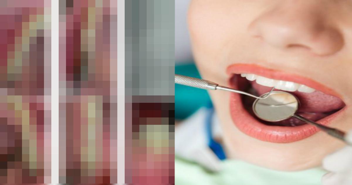 qq 7.jpg - 【世界初】「歯肉から毛が生えた」という女性の症例が報告される(画像あり)