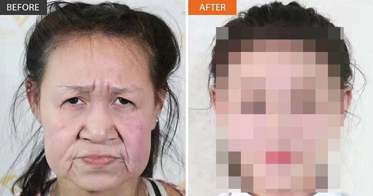 e696b0e8a68fe38397e383ade382b8e382a7e382afe38388 83.png - 【動画有】早老症で 60代にしか見えない⁉ 15歳少女が… 「OOで 新しい顔」を手に入れた⁉