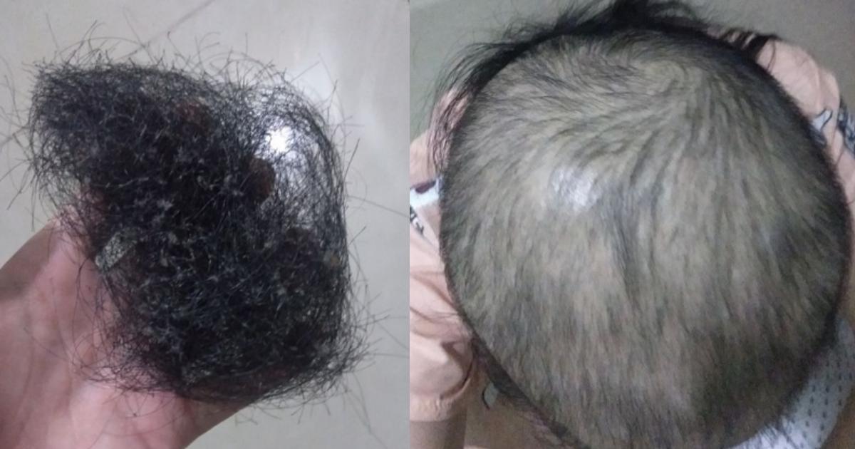 datumou.png - ストレスで衝動的に髪の毛を抜いてしまう女性、現在の髪の状態がヤバい…