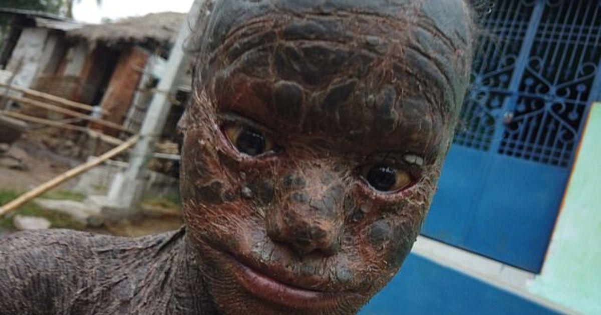 diseno sin titulo 60.jpg - Niño De 10 Años Es Conocido Como Serpiente Humana Por Sus Escamas (FOTOS)