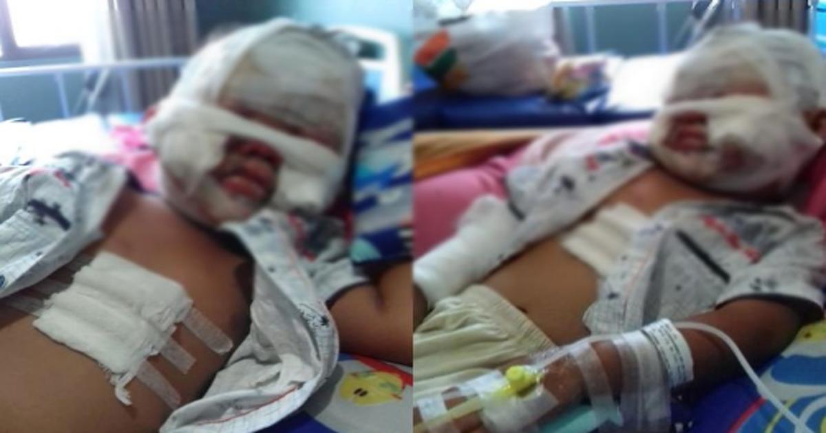 shoudokuzai.png - 新型コロナウイルスの予防で殺菌消毒剤を塗るも焼却場で全身やけどを負ってしまった3歳の娘のエピソードが悲しすぎる…