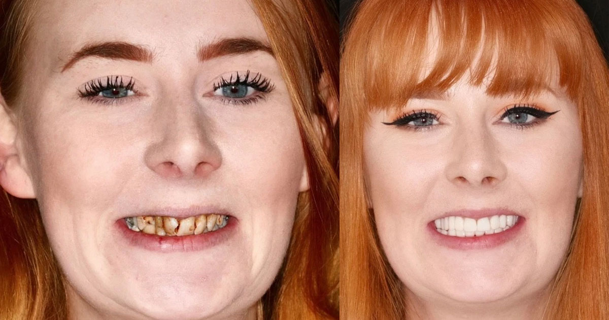 woman who was warned she would need full dentures to fix her rotten teeth transformed them with braces.jpg - A Woman Who Was Recommended To Wear Dentures Due To Rotten Teeth Got An Amazing Transformation Instead