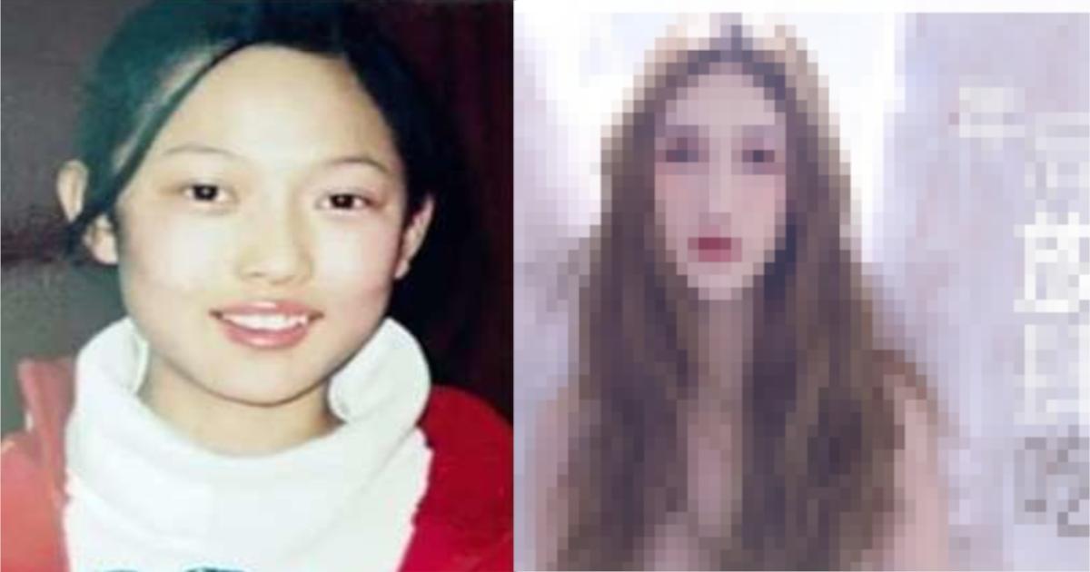 china.png - 14歳から○○回以上整形した30歳女性、美容整形外科のポスターに⁈ 成功の陰には失敗も…