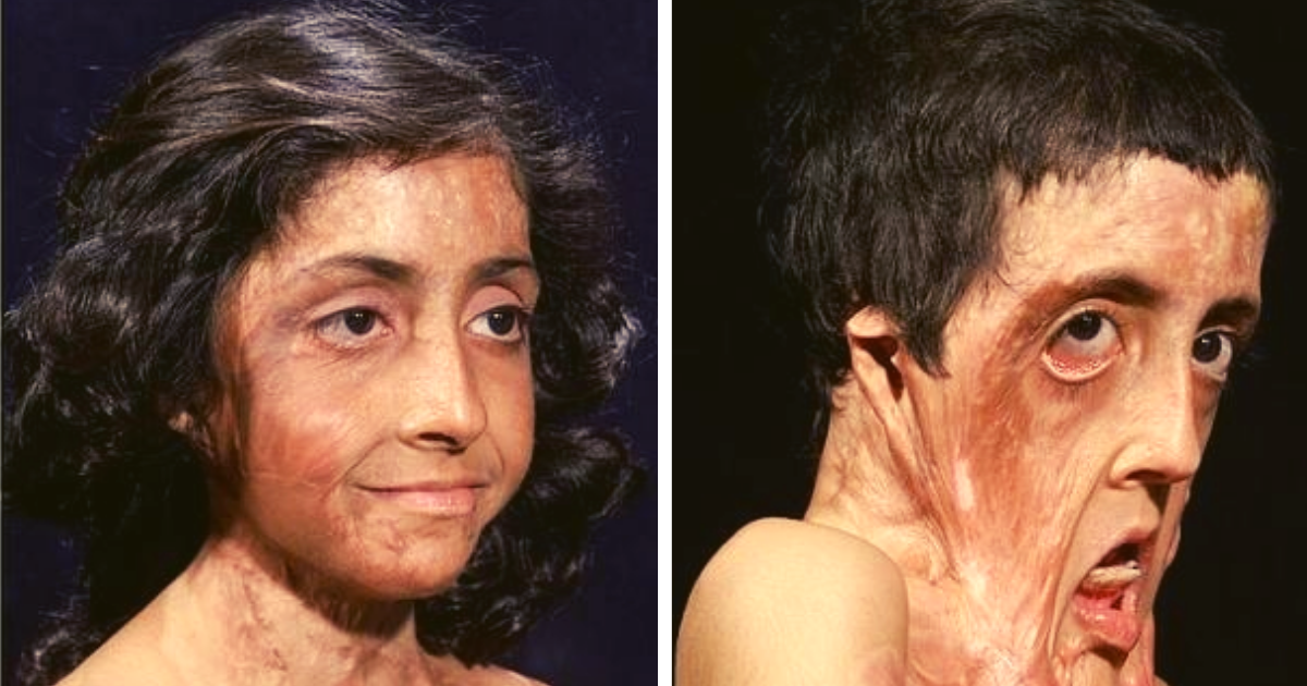 diseno sin titulo 66.png - Niña De 9 Años Sufrió Un Accidente Tras Intentar Encender La Estufa De La Cocina: Se Quemó Gran Parte De Su Cuerpo