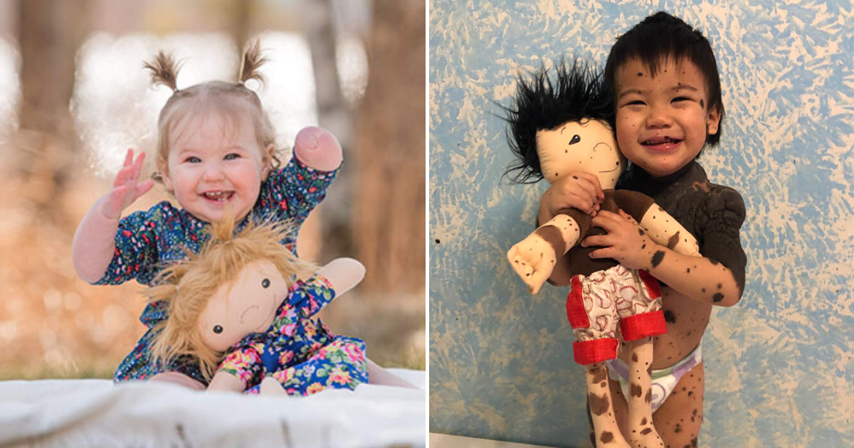 dolls12.png - Woman Makes Look-Alike Dolls For Children With Disabilities To Make Them Feel Special