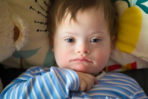 Las personas con síndrome de Down, propensas a sufrir apnea del sueño   Observatorio Global del Sueño   Tu web para dormir mejor