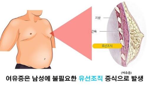 유방외과 박사가 말하는 여유증수술의 흑과백 - 국민일보