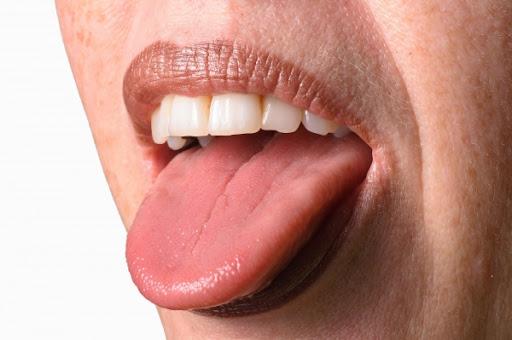 혀가 유리처럼 매끄러워진 남성 - 이웃집과학자