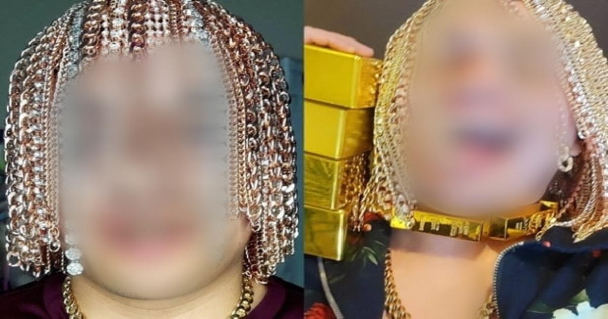 """eab888.jpg - """"저게 다 금이라고?""""...머리카락 다 뽑고 두개골에 금 사슬 이식한 래퍼의 정체(+사진)"""