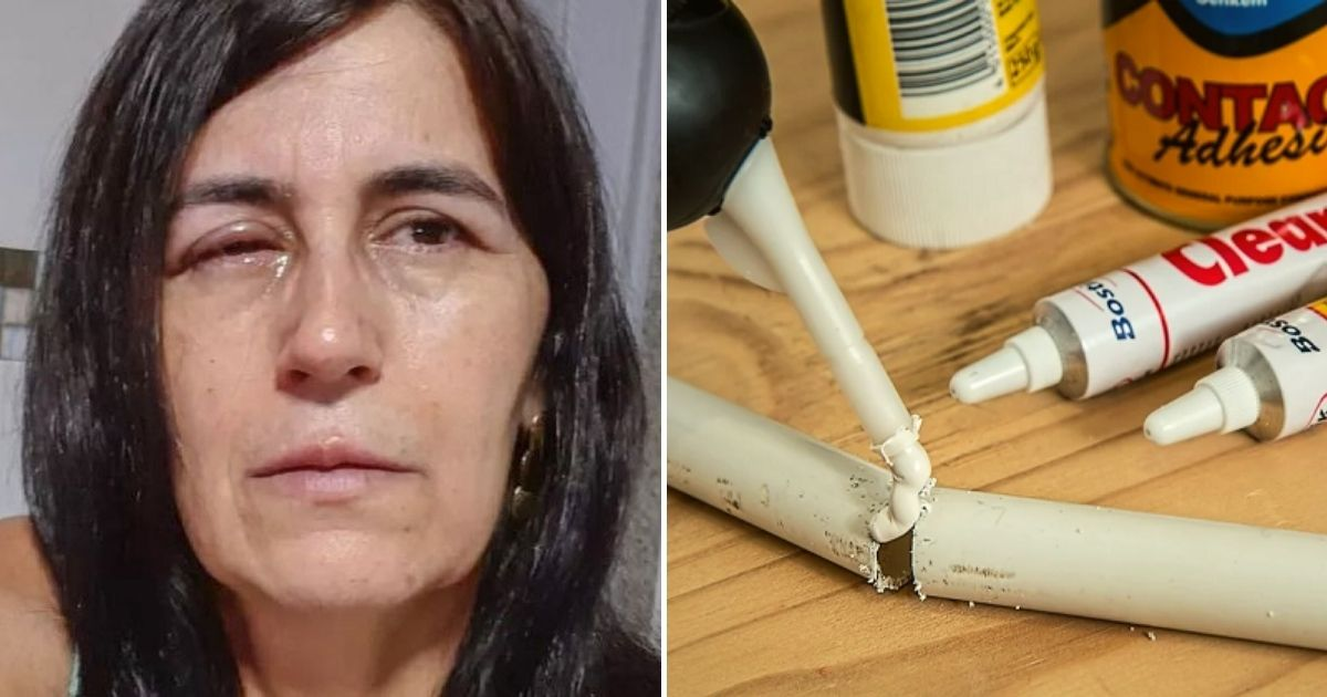 glue4.jpg - Man Accidentally Glues His Girlfriend's Eyes Completely Shut After Mixing Up Her Eye-Drops With Powerful Superglue