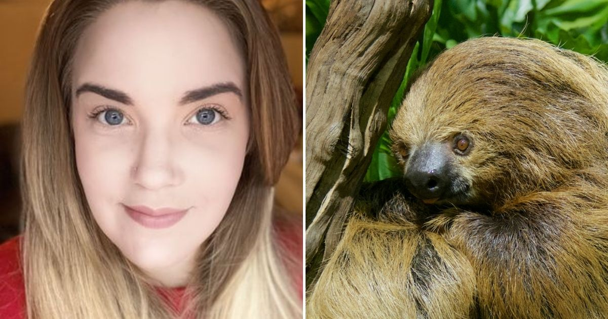 sloth.jpg - Mother 'Left Looking Like A Sloth' After Suffering A Severe Allergic Reaction To A Popular Beauty Treatment