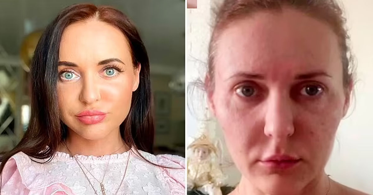 """t3 4.jpg - """"I Lost My Face Forever""""- Woman's Skin 'Shrinks Like A MUMMY' After Beauty Treatment Ages Her 10 Years Overnight"""